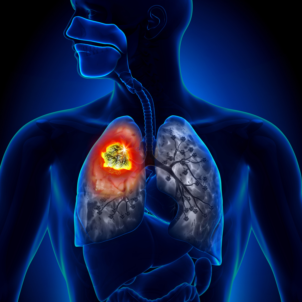 Lung Disease Disability Benefits The New Jersey